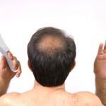 La calvicie masculina y tipos de alopecia