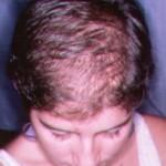 La calvicie o alopecia femenina