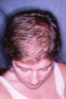 calvicie o alopecia femenina