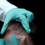 Tratamiento de calvicie con plasma rico en plaquetas PRP