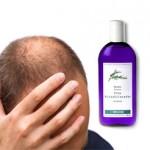 Tratamientos alternativos para la calvicie