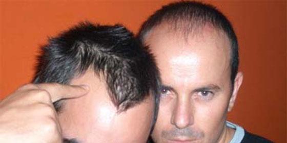 Los mejores remedios de la caída de los cabello
