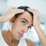 Tratamientos tópicos para la calvicie