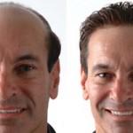transplantes de pelo o injertos capilares