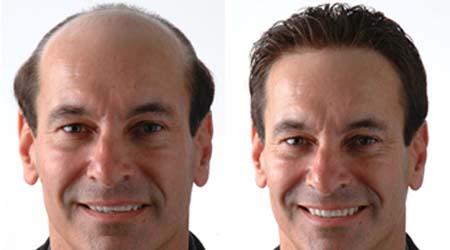 trasplantes de pelo o injertos capilares