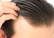 cuantos injertos de cabello se necesitan en un trasplante capilar